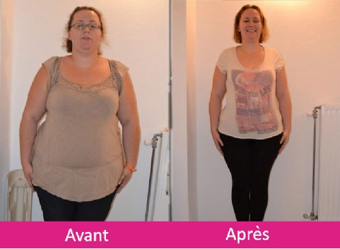 Bypass Tunisie : reduction estomac - court-circuit
