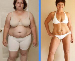 chirurgie obésité - sleeve Tunisie
