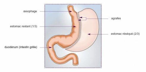 Comment alléger sa période de convalescence après une opération de la gastroplastie verticale calibrée ?