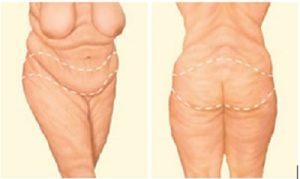 Bodylift ET lifting apres chirurgie obesite Tunisie